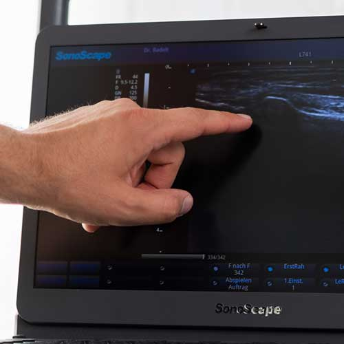 Orthopäde Ditzingen - Dr. Badelt - Erläuterungen am Monitor
